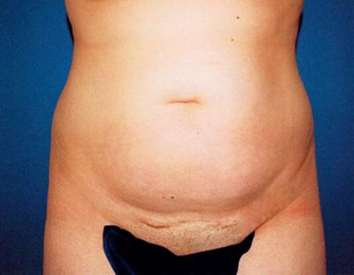 Liposuction Before and After Photos, Glendale Plastic