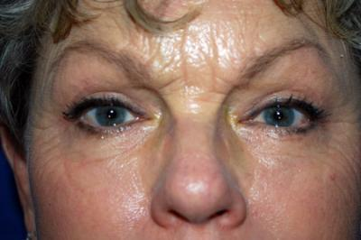After Results for Eyelid Surgery