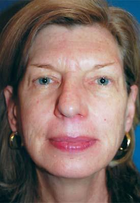 Before Results for Eyelid Surgery